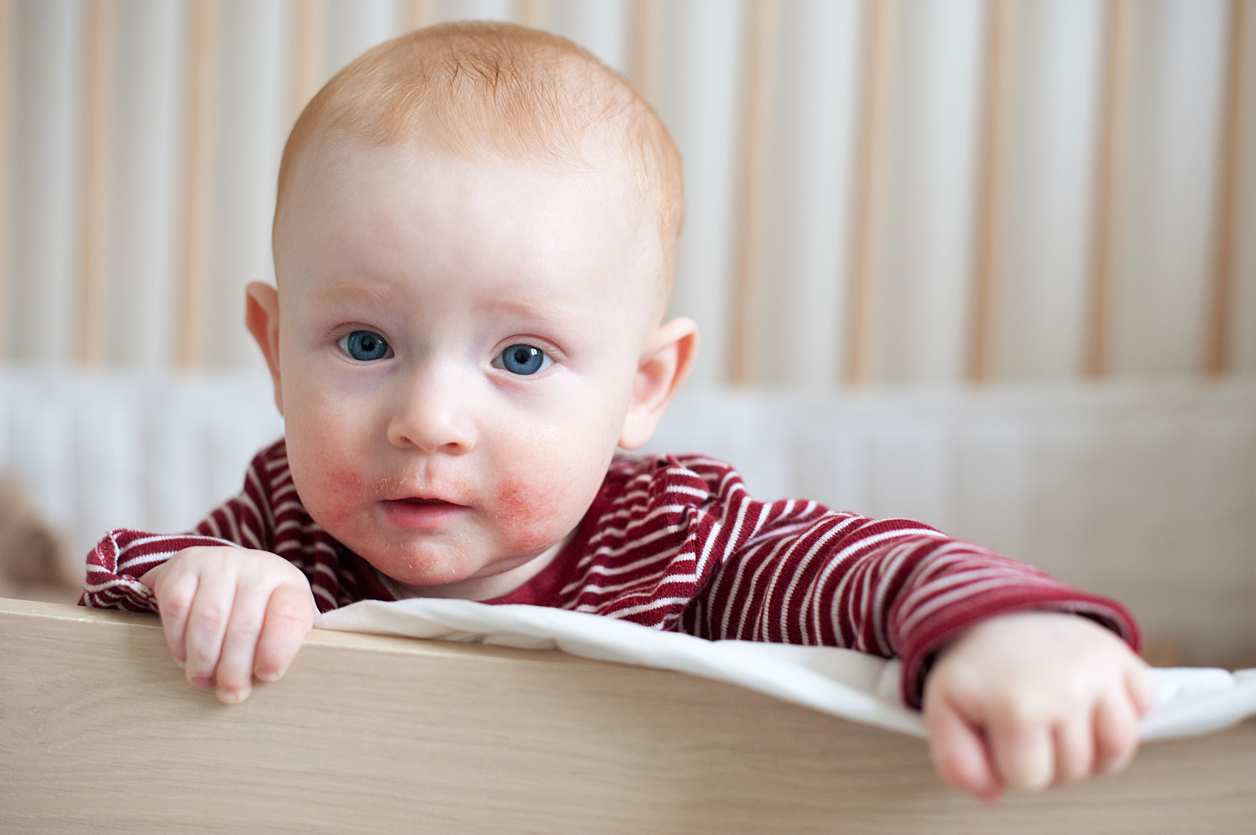 Allergie chez le bébé : identifier et traiter | Santé Magazine