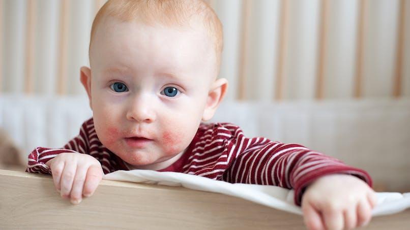 Comment réagir en cas d'allergie chez un bébé