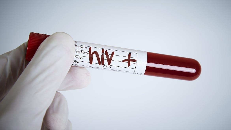Sida : il peint Lady Diana avec du sang de séropositif