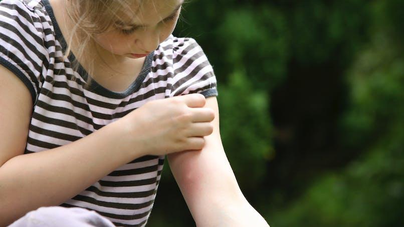 Moustiques : un nouveau virus sévit à Nice