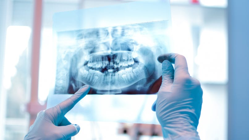 Attention aux dents avec certaines pratiques sportives