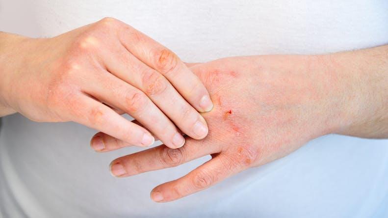 4 mythes sur les allergies cutanées