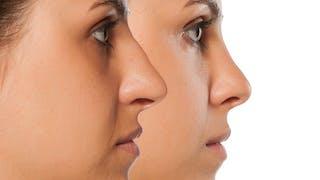 Refaire son nez sans chirurgie