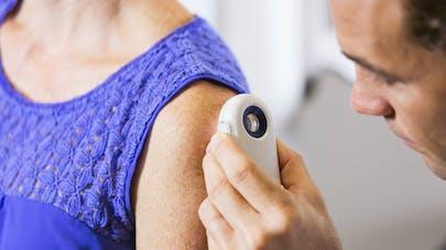 Hypertension: si vous prenez de l'hydrochlorothiazide, surveillez votre peau