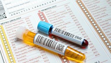 Décrypter son analyse d'urine