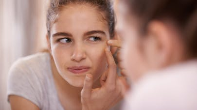 Pourquoi avons-nous plus d'acné l'hiver ?