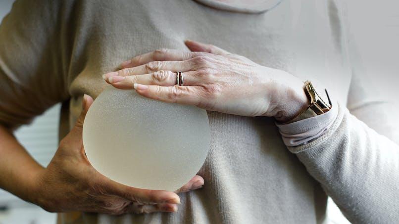Prothèses mammaires: les raisons de s'inquiéter