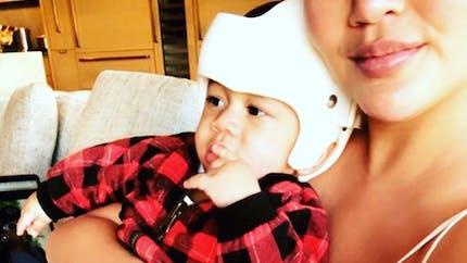 Pourquoi le bébé de Chrissy Teigen porte-t-il un casque ?