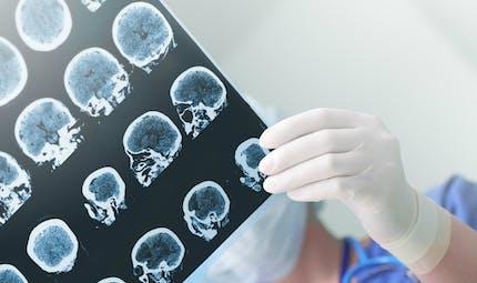 Il existerait plusieurs types de maladies d'Alzheimer