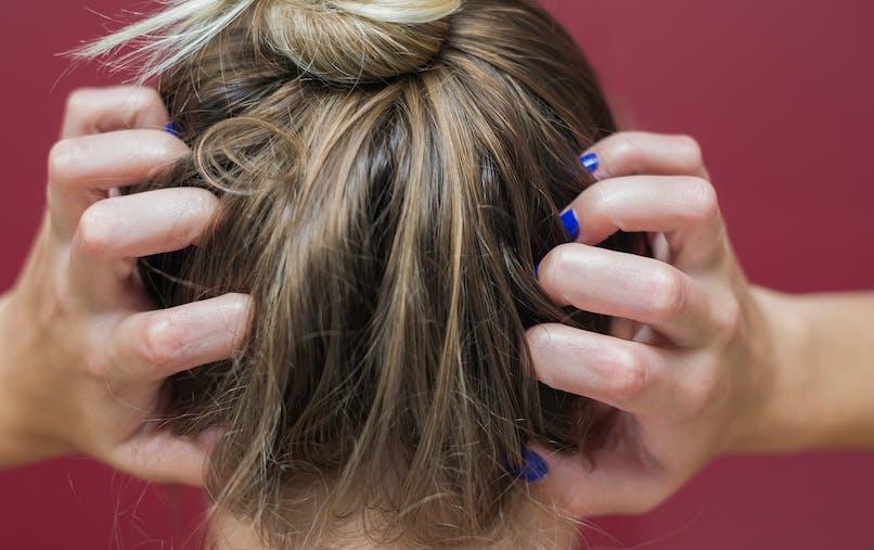5 raisons qui expliquent les démangeaisons de la tête