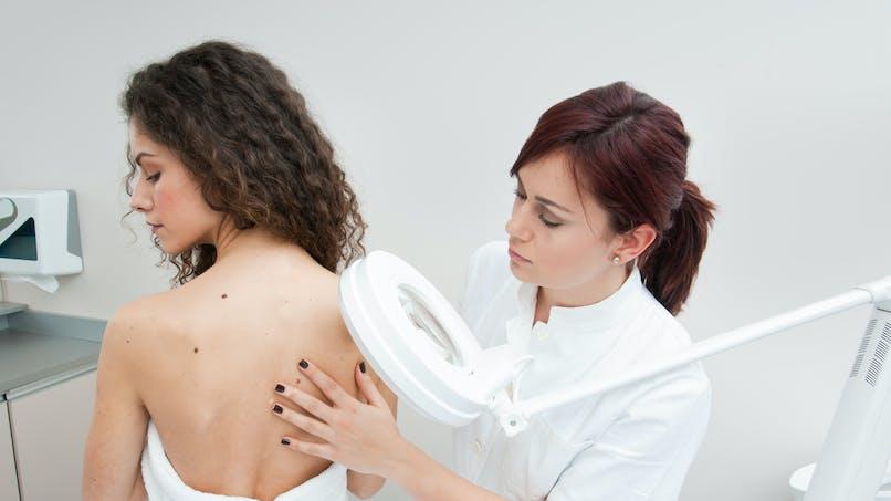 Cancer de la peau : il faut aussi dépister la muqueuse génitale