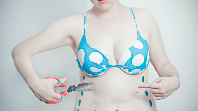"""""""Mommy makeover"""" : le forfait de chirurgie esthétique post-accouchement qui inquiète"""