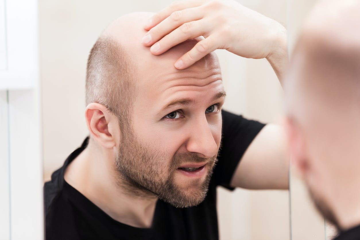 perte de cheveux de pilules de régime d as
