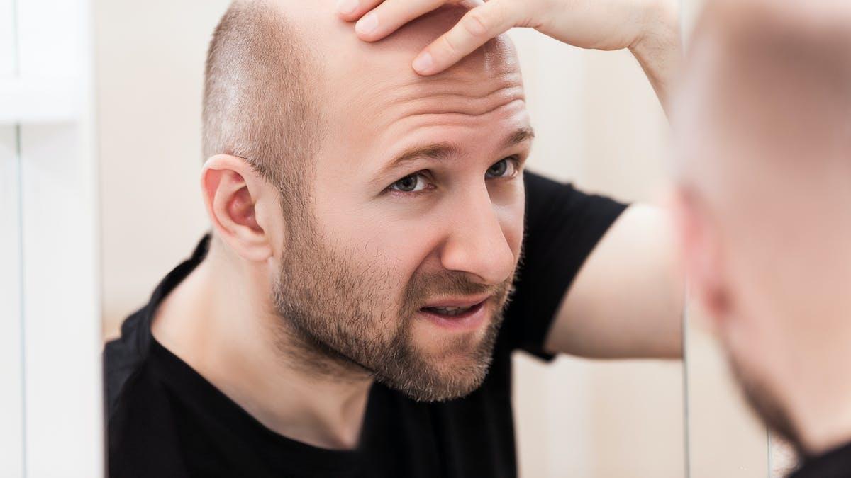 Chute de cheveux: nouvel appel à la prudence avec le finastéride