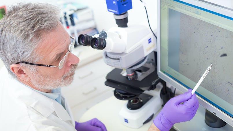 Le développement des cancers pourrait être dû à une seule et même cellule