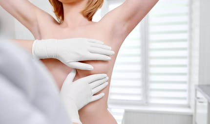 Cancer du sein: les tests prédictifs de récidive restent non remboursés
