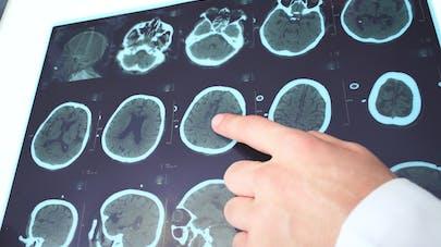 Journée internationale de l'épilepsie : mieux comprendre la maladie