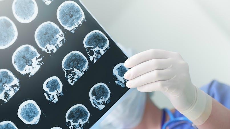 Voici comment l'exercice physique protège le cerveau contre la maladie d'Alzheimer