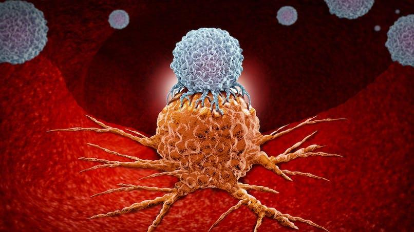 Cancer : 25% des patients obtiennent une réponse prolongée à l'immunothérapie