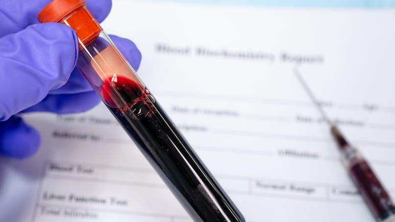 La FDA met en garde contre des injections de plasma pour diverses conditions thérapeutiques