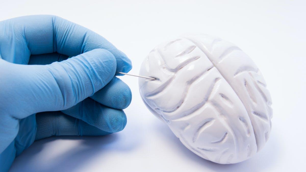 Parkinson : un médicament à l'essai donne des résultats prometteurs
