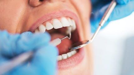 Des soins dentaires mieux remboursés depuis le 1er avril