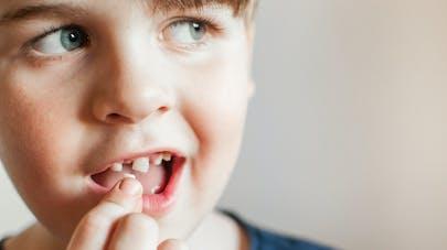 Dents de lait : leurs cellules souches pour sauver la vie des enfants ?