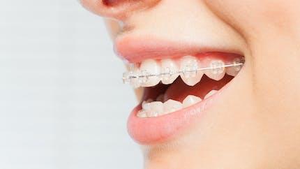 Orthodontie: mise en garde sur les «aligneurs» de dents