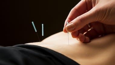 L'hypnose et l'acupuncture peuvent-elles aider à tomber enceinte ?
