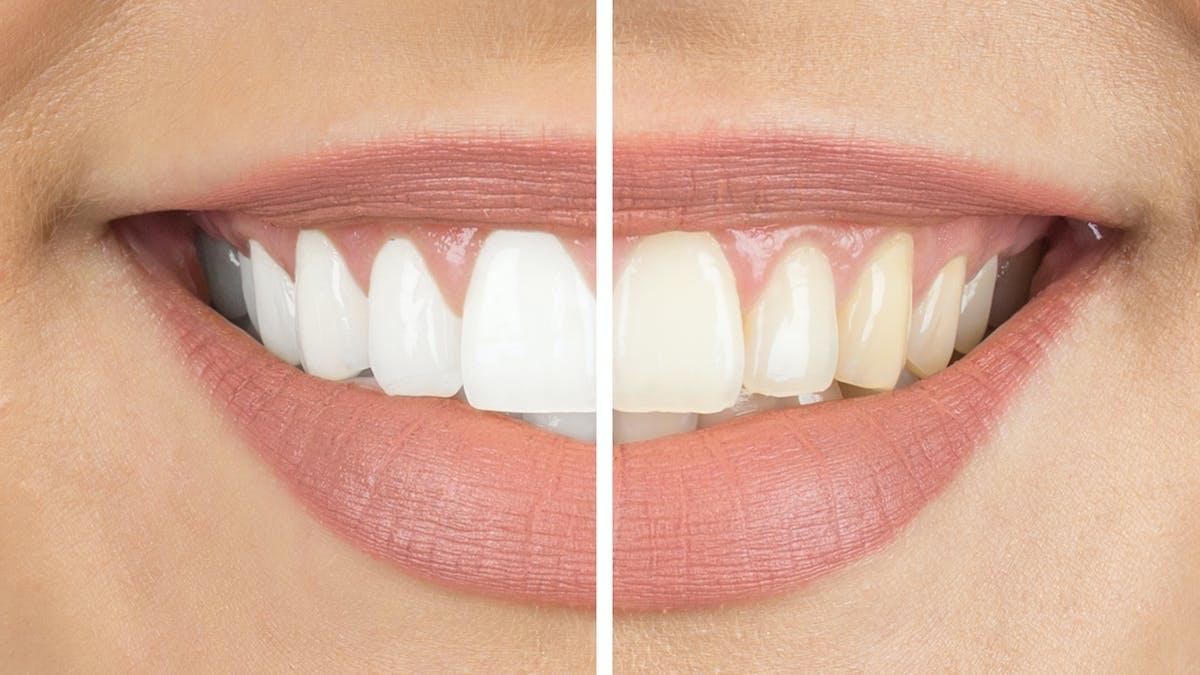 Blanchiment des dents : les produits en vente libre éroderaient les dents jusqu'au nerf
