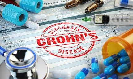 Quels traitements pour soulager la maladie de Crohn ?