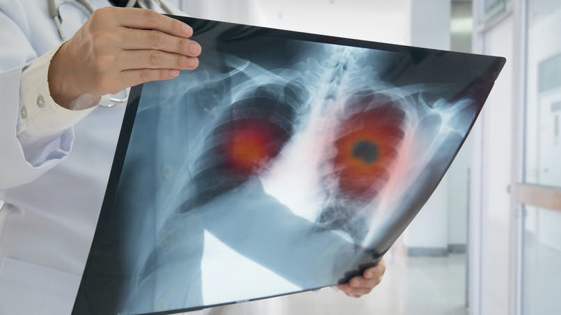 Cancer du poumon : les non-fumeurs seraient aussi affectés
