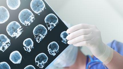Des chercheurs identifient un nouveau type de démence