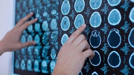 Découverte d'un lien entre cerveau et cancer