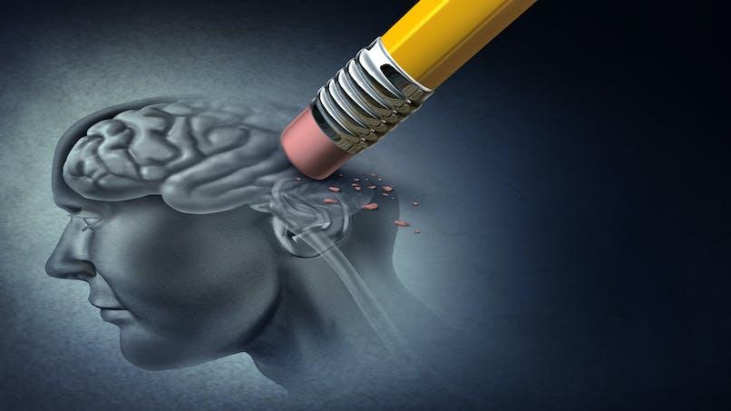 Alzheimer : des changements cérébraux présents 30 ans avant l'apparition des symptômes