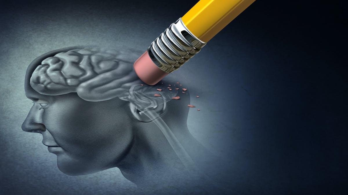 Alzheimer : des changements cérébraux présents des années avant les symptômes