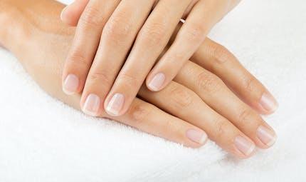 Que signifient des marques blanches sur les ongles ?