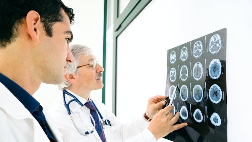 Sclérose en plaques : où en sommes-nous en 2019 ?