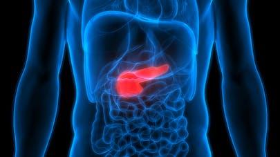 Cancer du pancréas : un nouveau traitement pour des patients porteurs d'une mutation BRCA