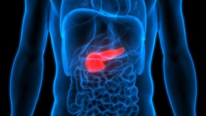 Cancer du pancréas : un nouveau traitement pour des patients porteurs d'une mutation BRCA (Asco 2019)