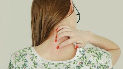 Pourquoi la varicelle peut-elle être grave chez un adulte ? | Santé ...