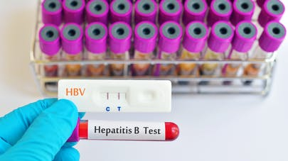 Comment se transmet l'hépatite B ?