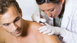 Les carcinomes: les cancers de la peau les plus fréquents
