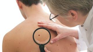 Cancers de la peau: quels traitements?