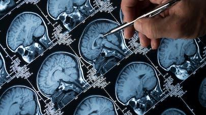 Épilepsie : un garçon qui faisait 100 crises par jour opéré avec succès