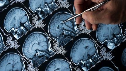 Epilepsie : opération réussie pour un garçon qui souffrait de 100 crises par jour