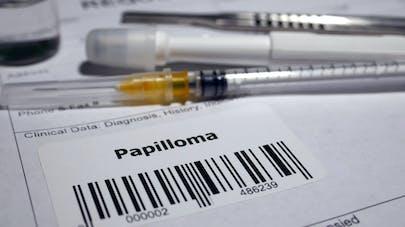 4 choses à savoir sur le papillomavirus