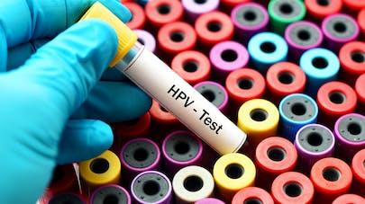 HPV : les femmes se croient à tort protégées par la monogamie