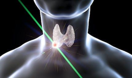 Comment soigner un nodule thyroïdien ?