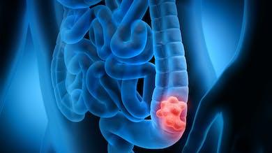 Cancer du côlon: quels traitements?